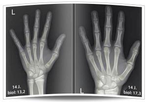 Bestimmung des biologischen Alters durch Röntgen